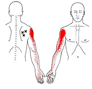 Shoulder_infraspinatus